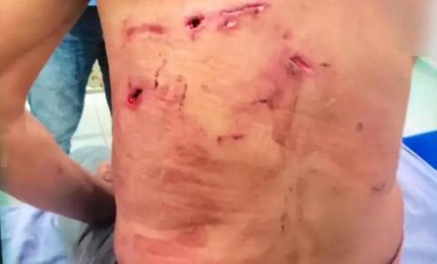 Homem atacado por onça-pintada é salvo por cinco cachorros